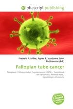 Fallopian tube cancer