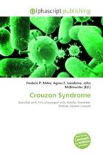 Crouzon Syndrome