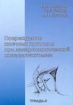Повреждение желчных протоков при лапароскопической холецистэктомии
