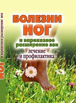 Болезни ног и варикозное расширение вен. Лечение и профилактика