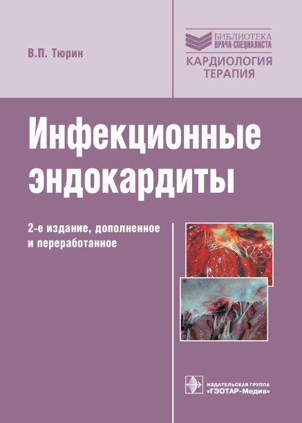 Инфекционные эндокардиты