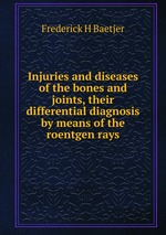 Injuries and diseases of the bones and joints, their differential diagnosis by means of the roentgen rays