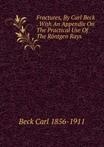 Fractures, By Carl Beck . With An Appendix On The Practical Use Of The Rntgen Rays