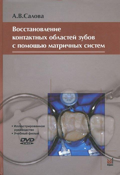 Восстановление контактных областей зубов с помощью матричных систем (+ DVD)
