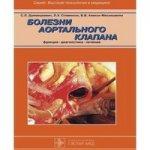 Болезни аортального клапана