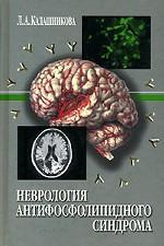 Неврология антифосфолипидного синдрома
