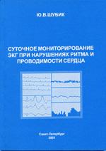 Суточное мониторирование ЭКГ при нарушениях ритма и проводимости сердца