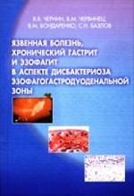 Язвенная болезнь, хронический гастрит и эзофагит в аспекте дисбактериоза эзофагогастродуоденальной зоны
