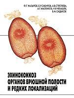Эхинококкоз органов брюшной полости и редких локализаций