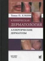 Скачать Клиническая дерматология. Аллергические дерматозы бесплатно