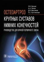 Остеоартроз крупных суставов нижних конечностей