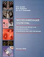 Мочекаменная болезнь. Актуальные вопросы диагностики и выбора метода лечения