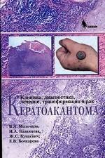 Кератоакантома