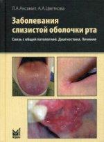 Заболевания слизистой оболочки рта. Связь с общей патологией. Диагностика. Лечение