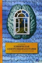 Клиническая электроэнцефалография с элементами эпилептологии
