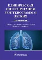 Клиническая интерпретация рентгенограммы легких. Справочник
