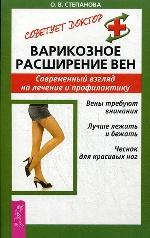 Варикозное расширение вен. Современный  взгляд на лечение и  профилактику. Степанова О