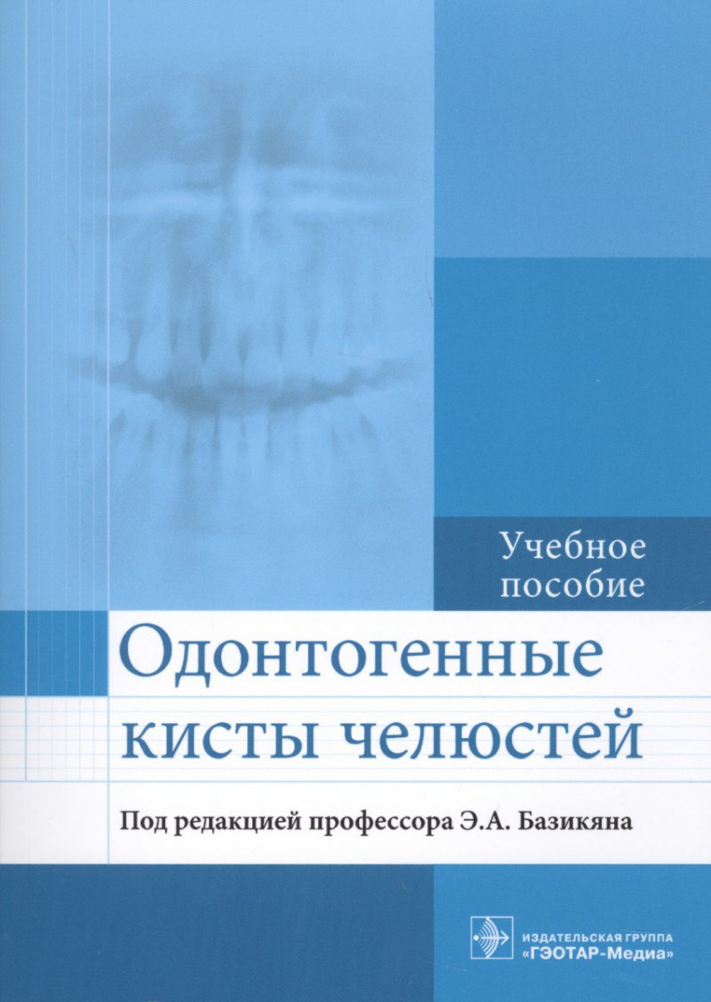 Одонтогенные кисты челюстей