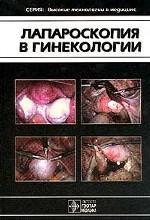 Лапараскопия в гинекологии