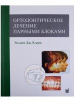 Ортодонтическое лечение парными блоками