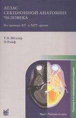 Атлас секционной анатомии. Т.1. Голова и шея