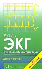 Хэмптон Джон. Атлас ЭКГ. 150 клинических ситуаций 150x243
