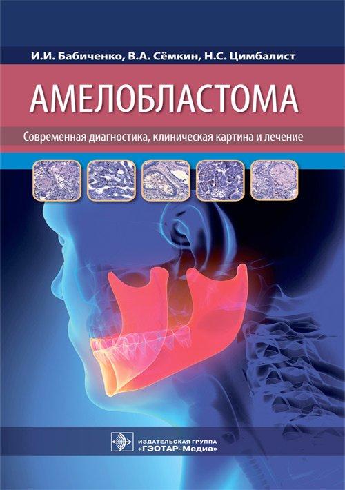 Амелобластома. Современная диагностика, клиническая картина и лечение