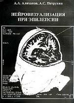 Нейровизуализация при эпилепсии