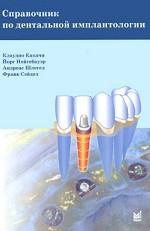 Справочник по дентальной имплантологии