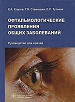 Офтальмологические проявления общих заболеваний