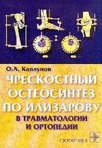 Чрескостный остеосинтез по Илизарову в травматологии и ортопедии