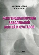 Рентгенодиагностика заболеваний костей и суставов