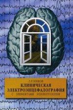Клиническая электроэнцефалография с элементами эпилептологии. 4-е изд