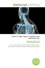 Ankylosis